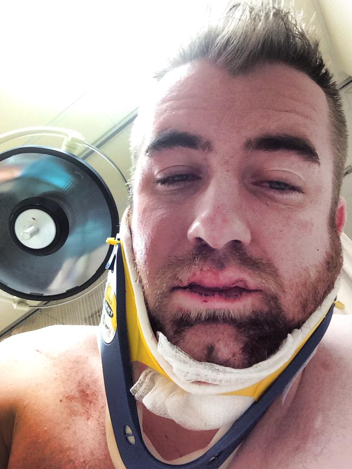 Dating Without A Voice: Eric Barry Dates With A Jaw Wired Shut ...