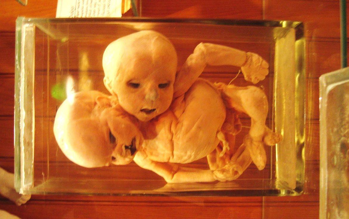 The Museum Dedicated to Deformity & Medical Oddities, The Mutter Museum -  Broke-Ass Stuart's Website